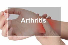 Arthritis Chiropractic Physician Normal Illinois