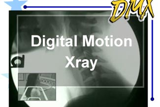 Digital Motion X-Ray