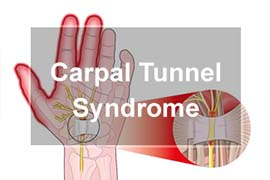Carpal Tunnel Syndrome Local Chiropractor Normal Illinois