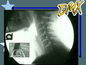 Digital Motion X-Ray