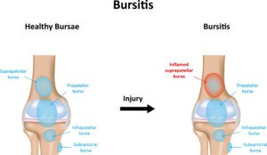Knee Bursitis Symptom