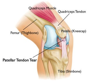 Knee Tendonitis