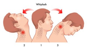 whiplash treatment in Normal, IL