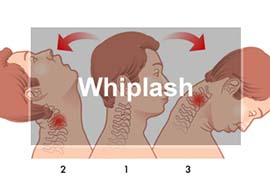 Whiplash Chiropractic Treatment Normal illinois