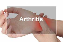 Arthritis Chiropractic Physician Normal Illinois